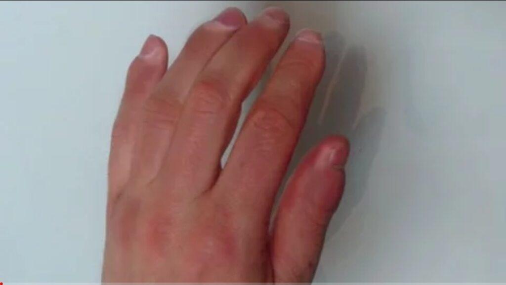 """Koronawirus w Polsce: Zanotowano nowy, nietypowy objaw COVID-19. """"Covidowe palce"""" dają objawy skórne jak przy odmrożeniu."""