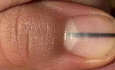 Makijażystka zauważyła skazę na paznokciu klientki. Jej reakcja uratowała życie kobiecie