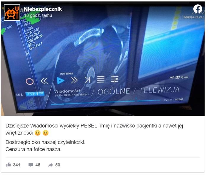 Wpadka Wiadomości TVP podczas głównego wydania wiadomości, przez przypadek pokazano dane wrażliwe pacjentki: imię, nazwisko, PESEL.