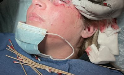 Kelsey Salmon przeżyła chwile grozy gdy udała się do kosmetyczki. Chciała poprawić swoją urodę, z omal nie straciła oka. Ku przestrodze