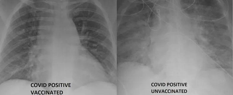 To zdjęcie RTG przedstawia płuca osób chorujących na COVID-19. Zasadnicza różnica jest taka, że jeden z pacjentów jest zaszczepiony